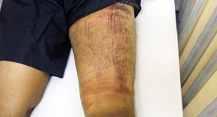 筋挫傷(肉離れや筋肉の損傷)